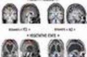 Perbaiki Sistem Otak, Sembuhkan Psikosomatik