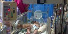 Rahang Bermasalah,  Bayi Kembar Parasit Makan Lewat Selang