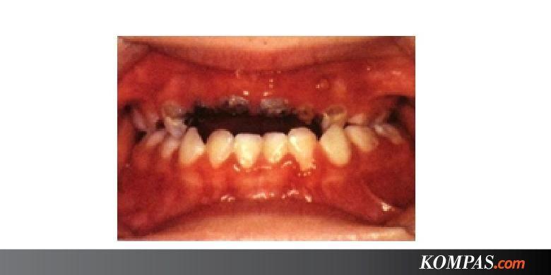 Gigi Atas Anak Tinggal Sedikit Akibat Karies 6d72a3bc7f
