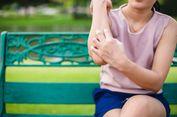 7 Hal yang Bikin Seseorang Lebih Sering Digigit Nyamuk