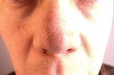 5 Tahap Menghilangkan Komedo Hitam Di Wajah