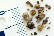 Untuk Batu Ginjal, Dokter Sarankan Metode Gelombang Kejut