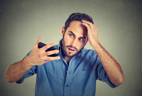 5 Cara Selamatkan Rambut dari Kebotakan