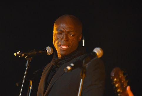 Fakta Penyakit Lupus yang Sebabkan Luka di Wajah Penyanyi Seal
