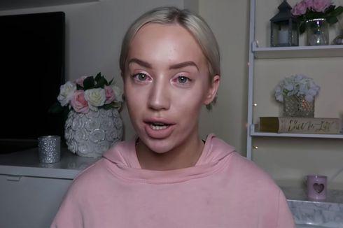 YouTuber yang Ditolak Hotel di Dublin Malah Ditagih Rp 86 Miliar