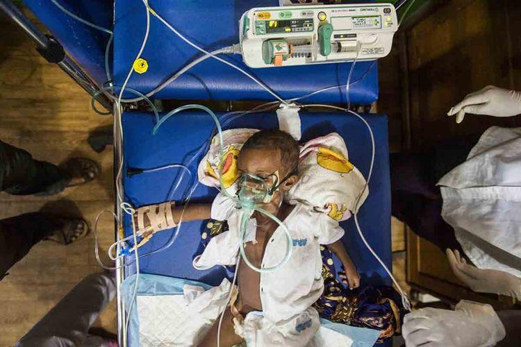 Dokter melakukan tindakan ke pasien Surfana (1 tahun) saat penanganan di Rumah Sakit Umum Daerah (RSUD) Agats, Kabupaten Asmat, Papua, Sabtu (27/1/2018). Data terakhir jumlah pasien campak dan gizi buruk di RSUD tersebut mencapai 88 dengan rincian penderita campak 7 pasien, gizi buruk 73 pasien, gizi buruk plus campak 2 pasien dan gizi kurang 6 pasien.