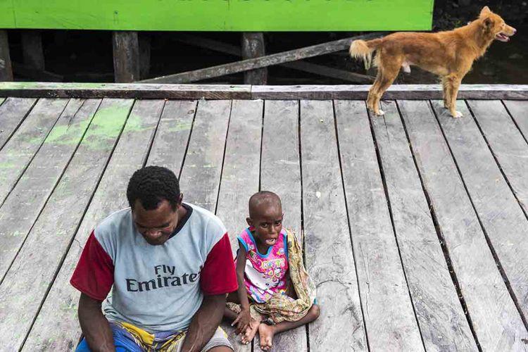 Seorang bapak mendampingi anaknya yang telah melewati perawatan di Rumah Sakit Umum Daerah (RSUD) Agats, Kabupaten Asmat, Papua, Sabtu (27/1/2018). Minimnya ketidaktahuan memilih, mengolah, menyajikan pangan yang ada menjadi sumber gizi, sarana kesehatan dan ketidakmampuan mengakses makanan menjadi salah satu pemicu warga di Kabupaten Asmat terkena wabah campak dan gizi buruk.