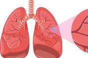 Teka-teki Kanker Paru, Mengapa Ada Perokok yang Tak Kena?