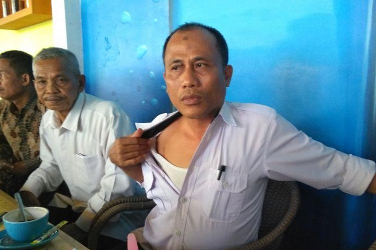 Kades Sengkati Baru, Kabupaten Batanghari, Herdianto saat menunjukkan bekas luka yang akibat dianiayaan oleh kelompok SMB.