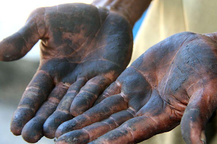 Syamsul Bahri (60), Warga Desa Suak Puntong, Kecamatan Kuala Pesisir, Kabupaten Nagan Raya, memperlihatkan tangannya yang hitam akibat debu batubara yang masuk kedalam rumahnya, Selasa (22/08/17)