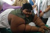Kisah Arya Permana, Anak Tergemuk di Dunia, yang Beratnya Turun 83 Kg