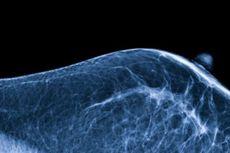 Payudara Wanita, Teka-teki Evolusi hingga Kanker yang Mematikan