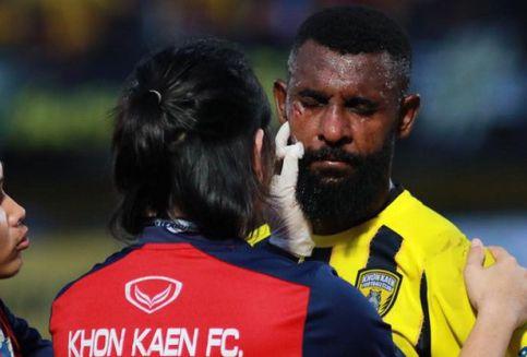 Yanto Basna Dapat Enam Jahitan Saat Tanding di Liga Thailand