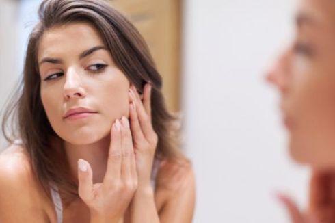 Kenali Ciri Jerawat Membandel karena Faktor Hormonal
