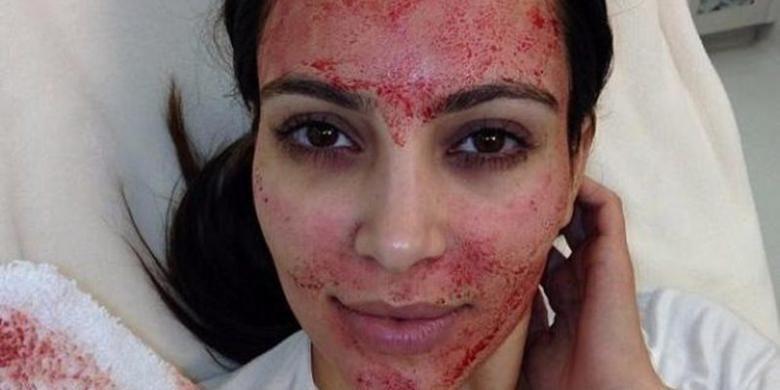Kim Kardashian lakukan perawatan Vampire Facial