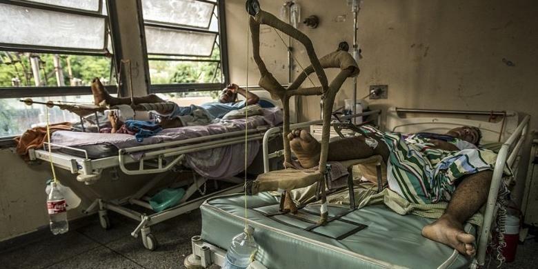 Dokter gunakan botol soda bekas untuk menangani pasien patah tulang di rumah sakit Venezuela.