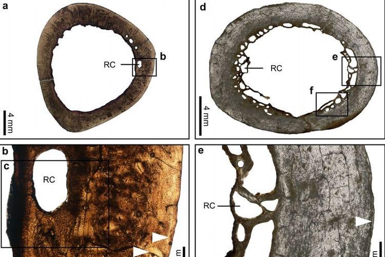 Tulang burung dodo
