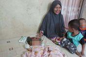 Gilang, Bayi Berwajah Dua Punya Reflek Isap yang Kurang Baik