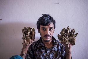"""""""Manusia Pohon"""" Bangladesh Ini Ingin Tangannya Diamputasi untuk Terbebas dari Sakit"""