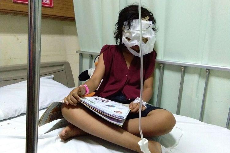 Dengan wajah dibalut perban, Rachel Heriani (11) asyik membaca buku saat ditemui di RSHS Bandung, Senin (9/10/2017) sore.