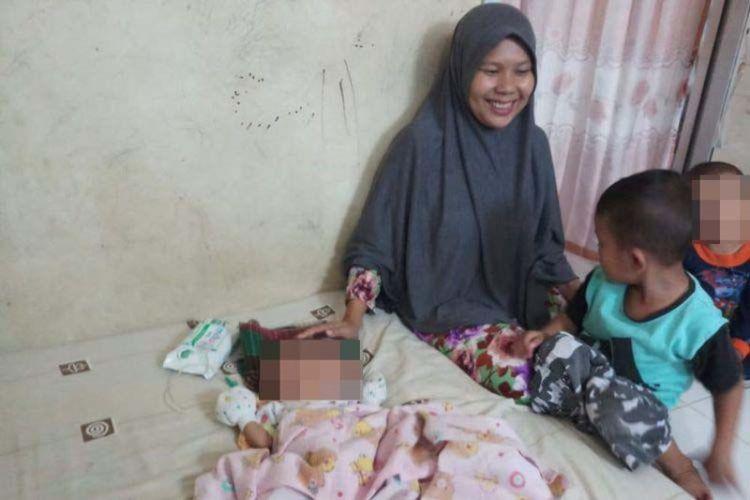Memilih untuk Dirawat di Rumah, Bayi Berwajah Dua dari Batam Ini Kerap Alami Sesak Nafas