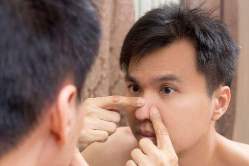 9 Hal yang Harus Diketahui Lelaki, Agar Jerawat Tak Mudah Muncul