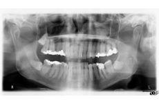Alasan Dokter Gigi Minta Anda Foto Panoramik Dulu Sebelum Tindakan