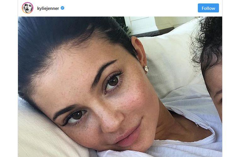 Kylie Jenner mengunggah foto tanpa makeup di akun tersebut, sambil memperlihatkan sedikit bagian dahi Stormi.