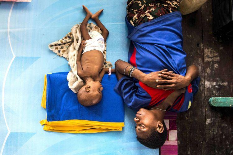 Seorang ibu bersama anaknya Amatus (3) tertidur di Aula Gereja Protestan, Agats, Kabupaten Asmat, Papua, Senin (22/1/2018). Jumlah anak penderita gizi buruk dan campak yang dirawat sebanyak 85 orang diantaranya di RSUD Agats 40 anak dan 45 anak di aula gereja Protestan Indonesia.