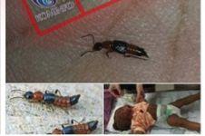 Viral Semut Charlie Berbahaya di Medsos, Hewan Apa Itu Sebenarnya?