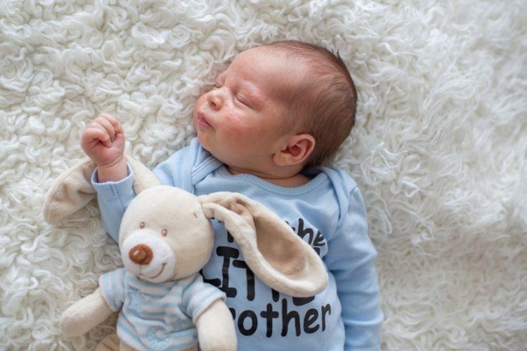 Ilustrasi bayi alergi