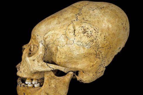 Bukan Kerjaan Alien, Orang Peru Kuno Sengaja Panjangkan Kepala agar...