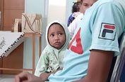 Jauh dari Rumah Sakit, Penderita Bibir Sumbing NTT Sulit Berobat