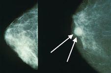6 Cara Mudah, Murah, dan Bisa di Rumah untuk Deteksi Kanker Payudara