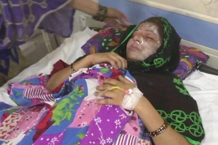 Farah (25) terluka setelah disiram cairan asam oleh suaminya.