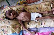 Bocah 4 Tahun di Aceh Utara Alami Gizi Buruk Akut