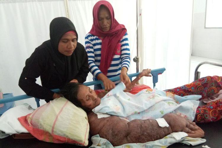 Suria Saun Palisoa, penderita kanker payudara, saat menjalani perawatan medis di Rumah Sakit Umum Daerah Piru, Kabupaten Seram Bagian Barat, Maluku, Selasa (20/2/2018).