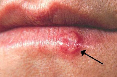 Sering Salah Paham, Telusuri Mitos dan Fakta Seputar Herpes Genital