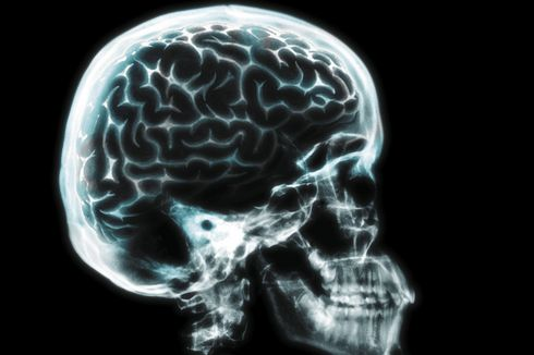 Kasus Langka, Sebagian Otak Lansia Ini