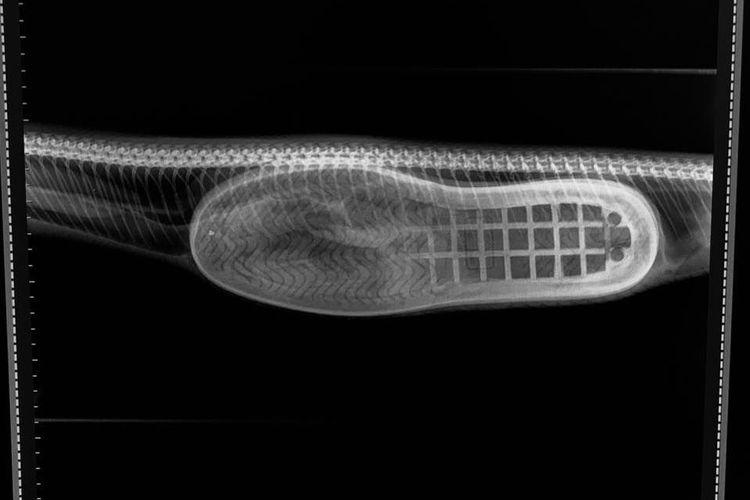 radiografi ular makan sepatu