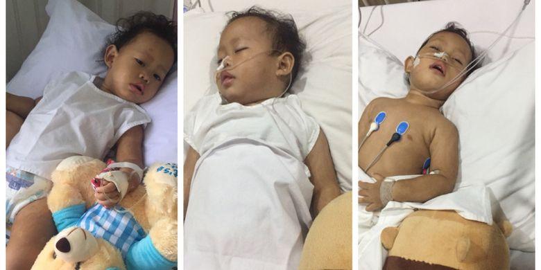 Kondisi bayi Iffah yang dirawat karena infeksi meningitis.
