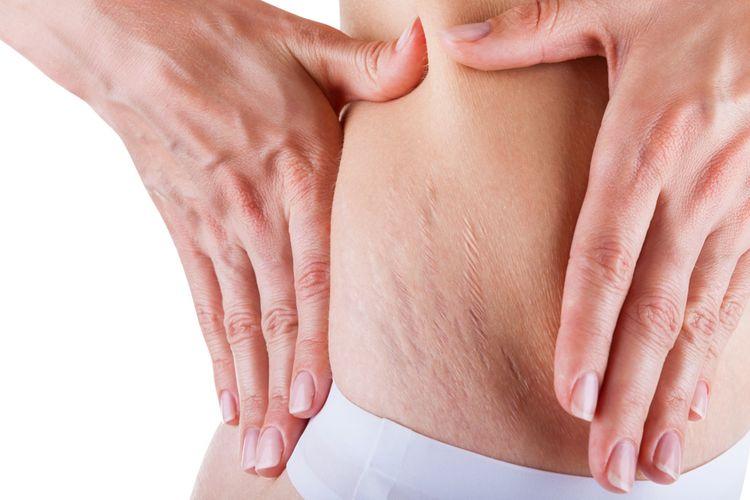 Ilustrasi stretch marks