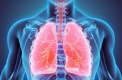 Merokok 1-2 Batang Sehari, Bisakah Kena Penyakit Paru-paru?