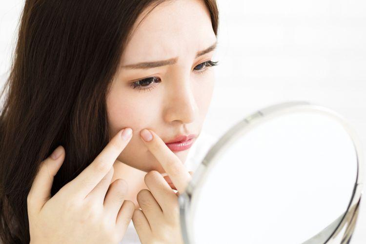 Hasil gambar untuk Mengenal Jenis dan Cara Perawatan Wajah Berjerawat dengan Tepat