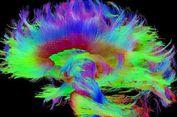 Menurut Para Peneliti, Dari Sinilah Kesadaran Anda Berasal