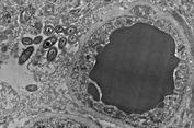 Temuan Awal, Ada Bakteri Hidup di Otak Kita