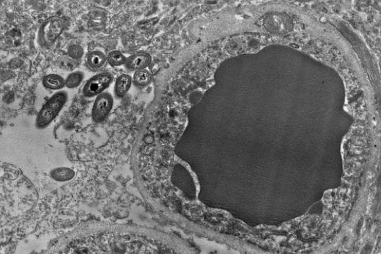 Bakteri di jaringan otak