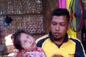 Pedihnya Kisah Farazil, Lima Tahun Terbaring Lemah di Rumahnya