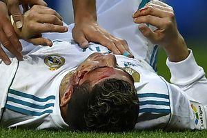 Hasil Liga Spanyol, Madrid Pesta 7 Gol, Ronaldo Alami Luka di Kepala