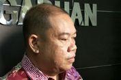Komnas HAM: Tak Ada Langkah Konkret Jaksa Agung Tuntaskan Kasus Pelanggaran HAM Masa Lalu